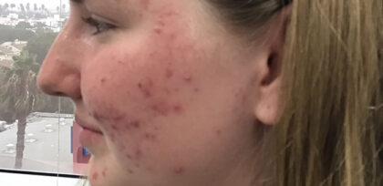 Acne Treatment Before & After Patient #11016
