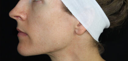 Acne Treatment Before & After Patient #11031