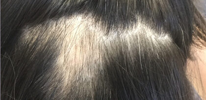Hair Loss Treatment Before & After Patient #11034