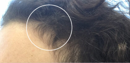 Hair Loss Treatment Before & After Patient #11037