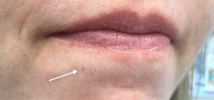 Vbeam laser Before & After Patient #11040