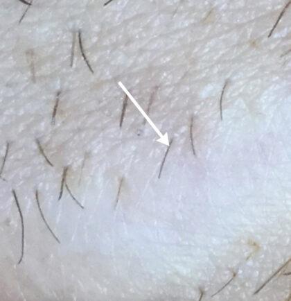 Vbeam laser Before & After Patient #11081