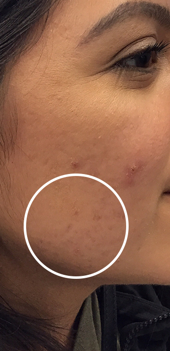Acne Treatment Before & After Patient #11025