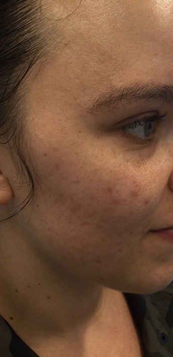 Acne Treatment Before & After Patient #11057