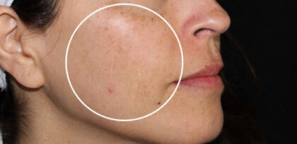 Melasma Treatment Before & After Patient #11060