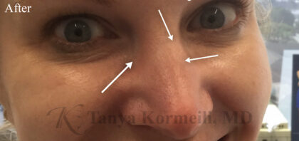 Botox Before & After Patient #11069