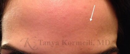 Botox Before & After Patient #11091