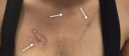 Scar Removal Before & After Patient #11013