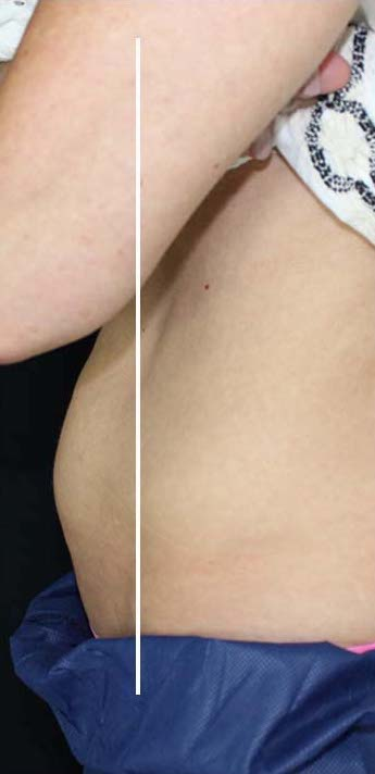CoolSculpting Before & After Patient #11103