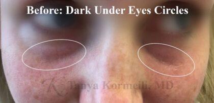 Dark Under Eyes Before & After Patient #11118