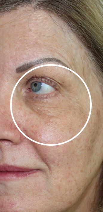 Dark Under Eyes Before & After Patient #11121