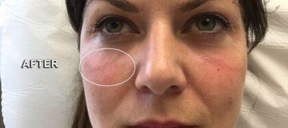 Dark Under Eyes Before & After Patient #11138