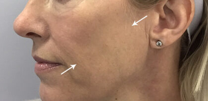 Dermal Fillers Before & After Patient #11144