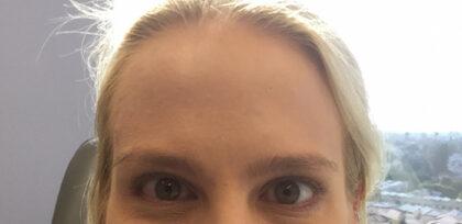 Dermal Fillers Before & After Patient #11147