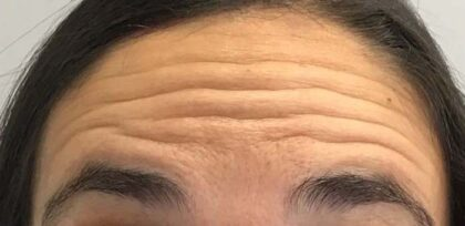 Botox Before & After Patient #11150