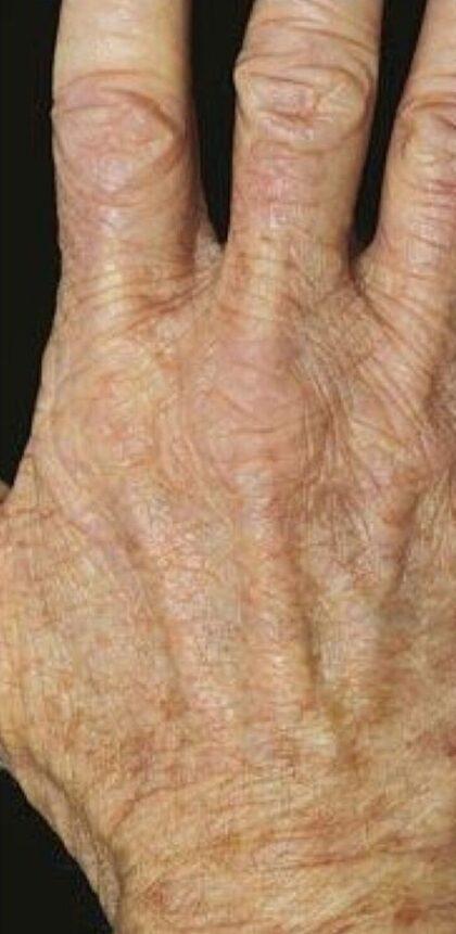 Hand Rejuvenation Before & After Patient #11156