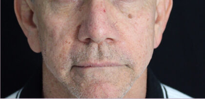 Fraxel Laser Therapy Before & After Patient #11197