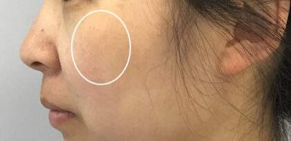 Fraxel Laser Therapy Before & After Patient #11200