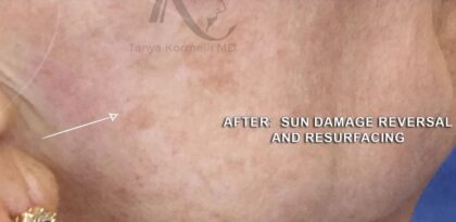 IPL Photofacial Before & After Patient #11203
