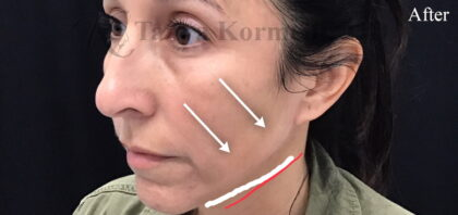 Jawline Contouring Before & After Patient #11162