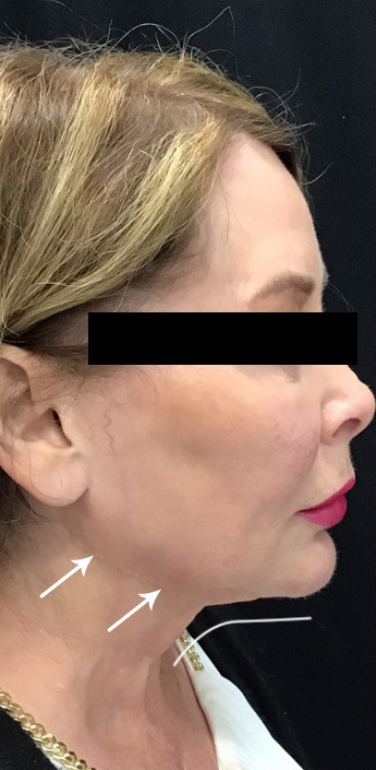 Jawline Contouring Before & After Patient #11159