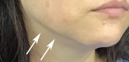 Jawline Contouring Before & After Patient #11165