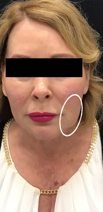 Dermal Fillers Before & After Patient #11168
