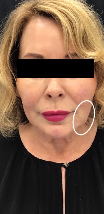 Dermal Fillers Before & After Patient #11168