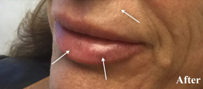 Juvederm Before & After Patient #11177