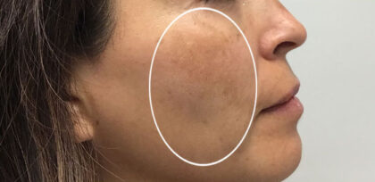 Melasma Treatment Before & After Patient #11213