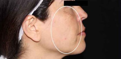 Melasma Treatment Before & After Patient #11216