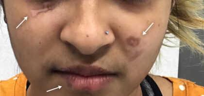 Scar Removal Before & After Patient #11075