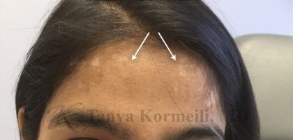 Scar Removal Before & After Patient #11097