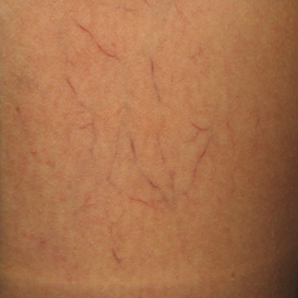 Sclerotherapy Before & After Patient #11601