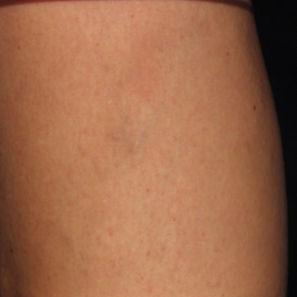 Sclerotherapy Before & After Patient #11604