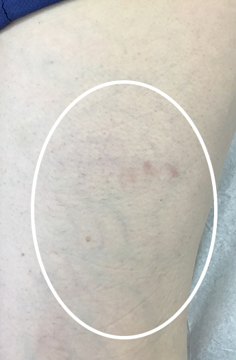 Sclerotherapy Before & After Patient #11241
