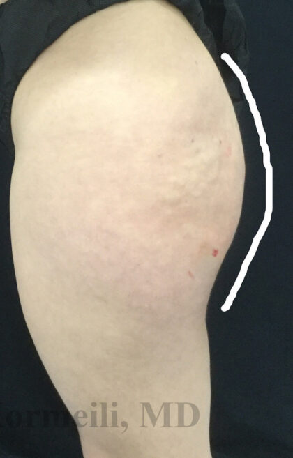 Sculptra BBL Before & After Patient #11250