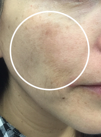 Melasma Treatment Before & After Patient #11256