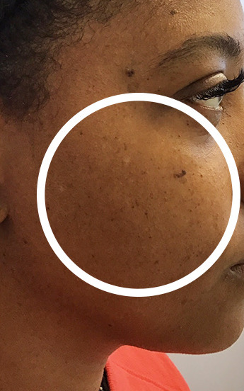 Mole Removal Before & After Patient #11262