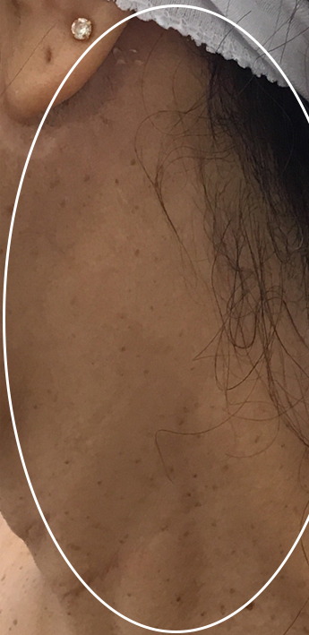 Mole Removal Before & After Patient #11265