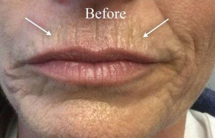 Dermal Fillers Before & After Patient #11268