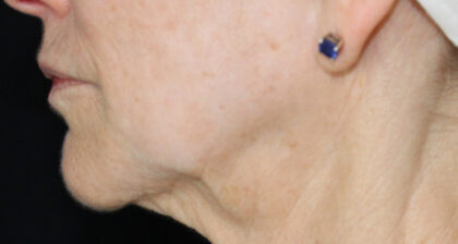 Skin Laxity Before & After Patient #11279