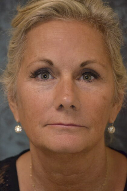 Facelift Before & After Patient #12060