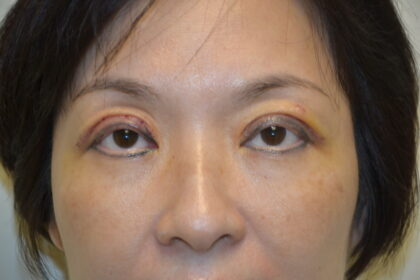 Blepharoplasty Before & After Patient #11943