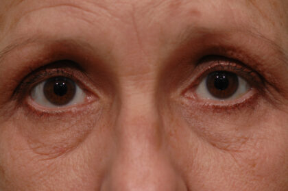 Blepharoplasty Before & After Patient #11938