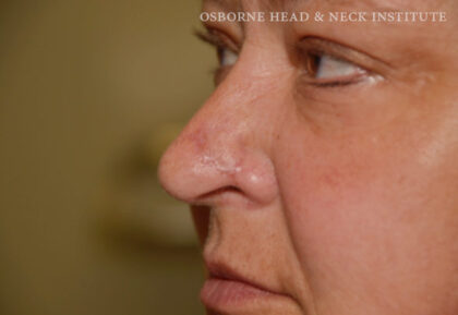 Mohs Surgery Before & After Patient #12180
