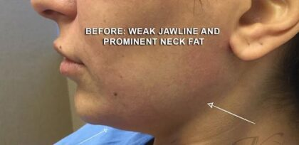 Jawline Contouring Before & After Patient #12584