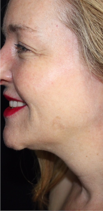 Skin Laxity Before & After Patient #12393