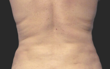 CoolSculpting Before & After Patient #12376