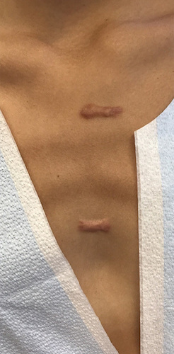 Keloid Before & After Patient #12765